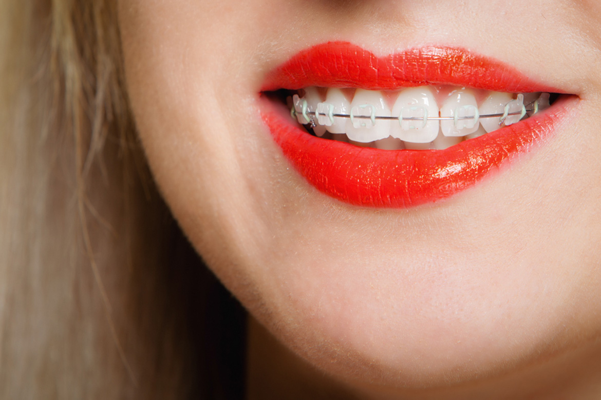 Ceramic Braces in Temecula