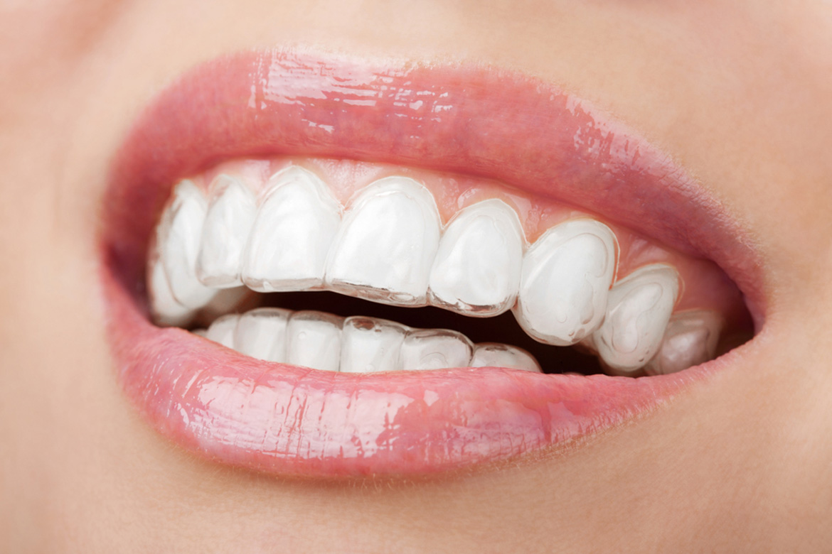clear braces in temecula