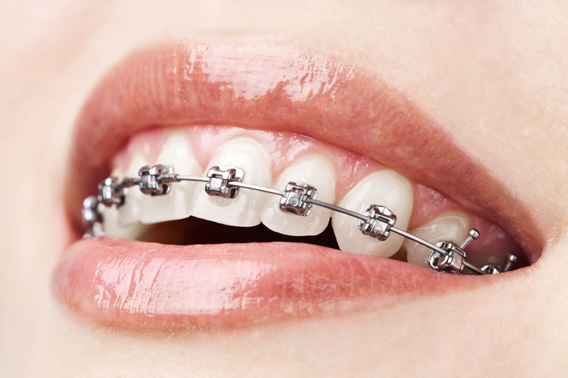 Metal Braces in Temecula