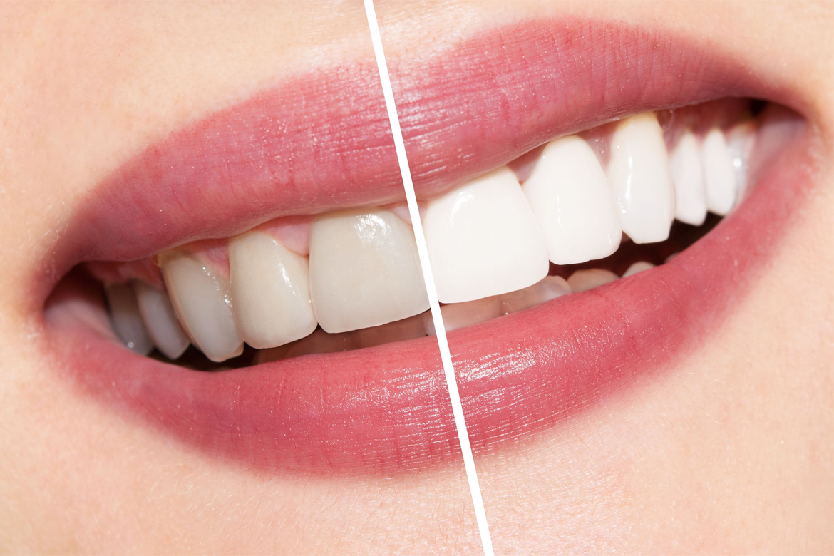 teeth whitening in temecula